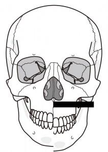 顎が割れた頭蓋骨